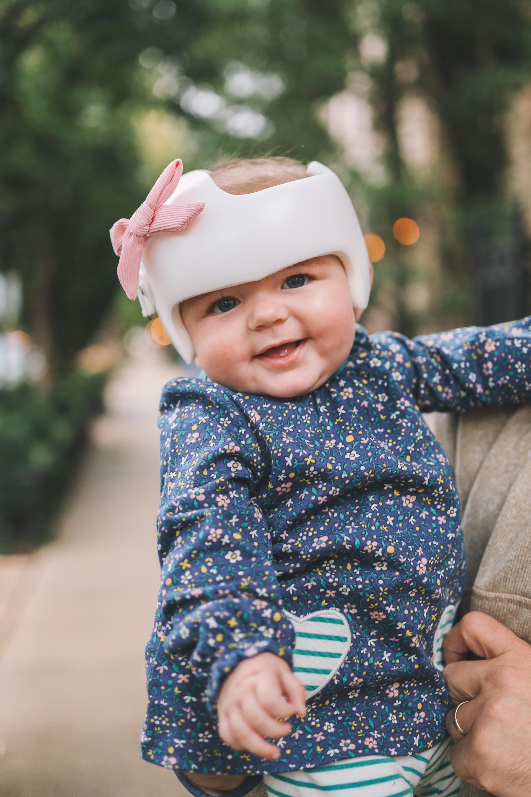 Plagiocephaly helmet for babies